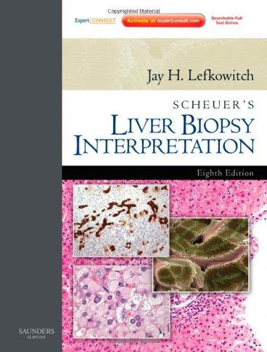 Scheuer'S Liver Biopsy Interpretation: Expert Consult: Online And Print, 8E