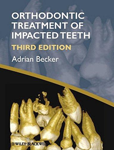 Orthodontic Treatment of Impacted Teeth