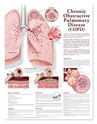 Chronic Obstructive Pulmonary Disease (COPD) Anatomical Chart 2nd Edition