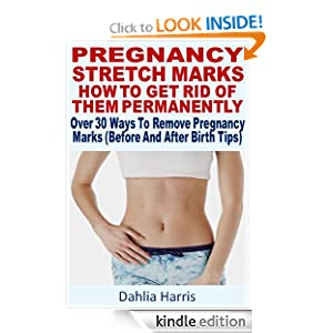 How To Get Rid Of New Stretch Marks During Pregnancy Treatment