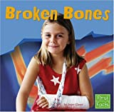 Broken Bones (First Facts) (0736863303) by Glaser