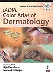 IADVL Color Atlas of Dermatology