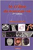Le crâne du nouveau-né : Des contraintes foetales et leurs enjeux neurologiques aux répercussions chez l'adulte
