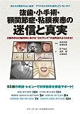 抜歯・小手術・顎関節症・粘膜疾患の迷信と真実
