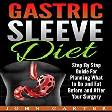 Gastric Sleeve Diet: Step by Step Guide for Planning What to Do and Eat Before and After Your Surgery | Livre audio Auteur(s) : John Carter Narrateur(s) : Dean Eby