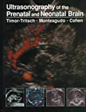 img - for Ultrasonography of the Prenatal and Neonatal Brain book / textbook / text book