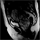 Carcinosarcoma