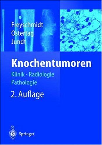 Knochentumoren : Klinik - Radiologie - Pathologie
