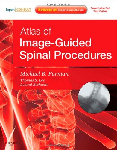 Atlas of Image-Guided Spinal Procedures, 1e