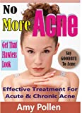No More ACNE: Effective Treatment For Acute And Chronic Acne