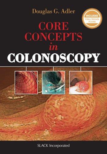 Core Concepts In Colonoscopy
