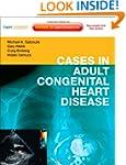 Cases in Adult Congenital Heart Disea...