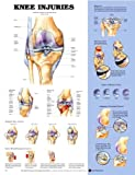 Anatomical Chart Company Knee Injuries Chart