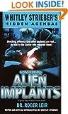 Casebook: Alien Implants (Whitley Strieber's Hidden Agendas)