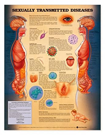 sexually transmitted diseases laminated poster 20quot x 26