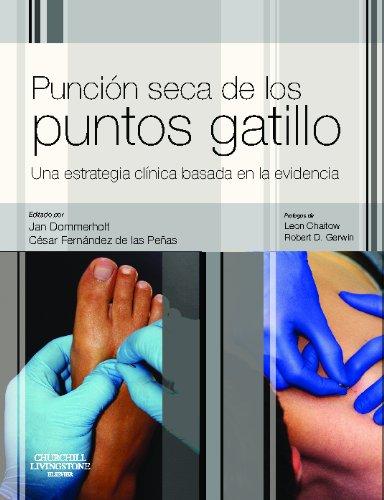 PUNCION SECA DE LOS PUNTOS GATILLO