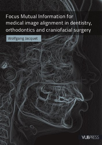 Focus Mutual Information for Medical Image Alignment in Dentistry Orthodontics and Craniofacial Surgery