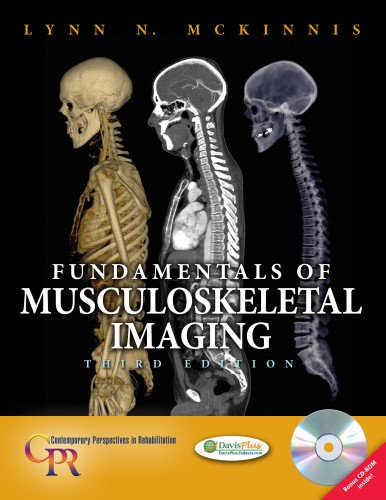 Fundamentals of Musculoskeletal Imaging (Contemporary...