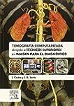 Tomograf�a Computarizada Dirigida A T...