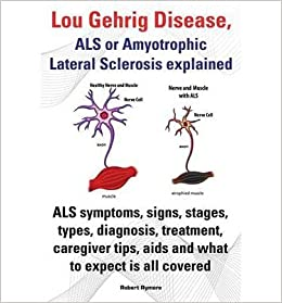 als lou gehrig disease Als (lou gehrig's disease) at henry ford's harry j hoenselaar als clinic, our als patients have the advantage of expert diagnosis, early therapeutic intervention, the choice to participate in the newest clinical trials and ongoing care in a multidisciplinary team setting for the highest quality of daily life.