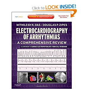 Electrocardiography of Arrhythmias: A Comprehensive Review Free Download 51D-QMRb6LL._BO2,204,203,200_PIsitb-sticker-arrow-click,TopRight,35,-76_AA300_SH20_OU01_