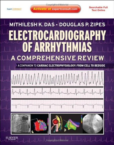 Electrocardiography Of Arrhythmias: A Comprehensive Review: A Companion To Cardiac Electrophysiology: Expert Consult - Online And Print, 1E