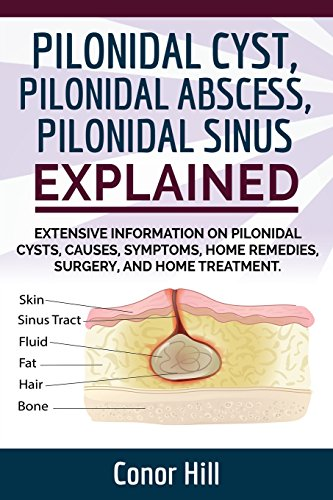 Pilonidal Cyst Home Remedies 28 Images 1000 Ideas
