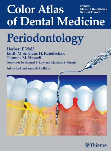 Color Atlas of Dental Medicine: Periodontology: Periodontology