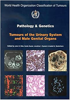 classification tumours female reproductive organs iarc
