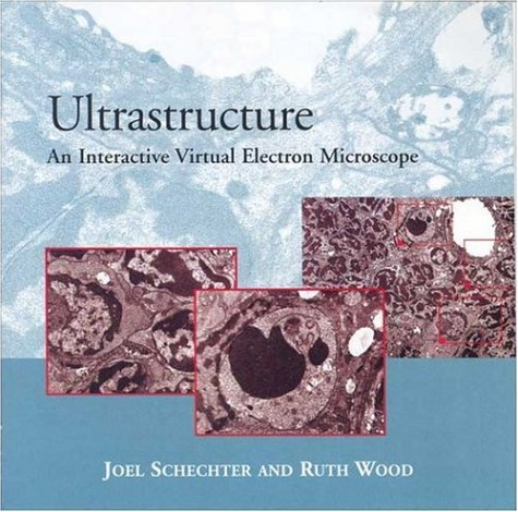 Ultrastructure: An Interactive Virtual Electron Microscope