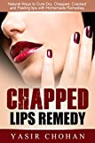 Chapped Lips:Chapped Lips Remedy: Natural ways to Cure Dry,Chapped,Cracked and Peeling lips with Homemade Remedies (severe chapped lips causes & Cure)