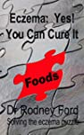 Eczema: Yes! You Can Cure It: Foods -...