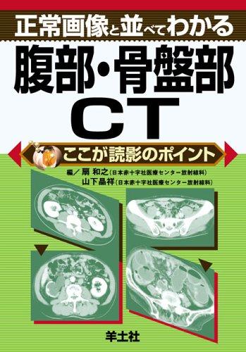 正常画像と並べてわかる腹部・骨盤部CT (ここが読影のポイント)