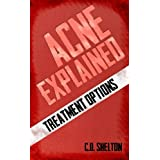 Acne Explained: Treatment Options