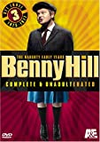 Benny Hill Complete and Unadulterated - The Naughty Early Years, Set Three (1975-1977)