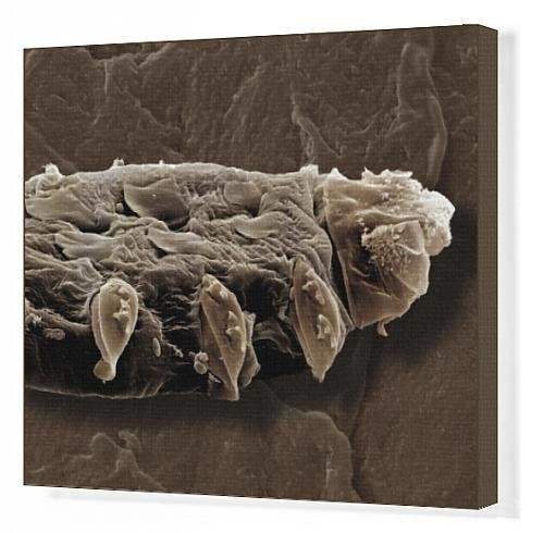Canvas Print Of Scanning Electron Micrograph (Sem) Follicle Mite From Ardea Wildlife Pets