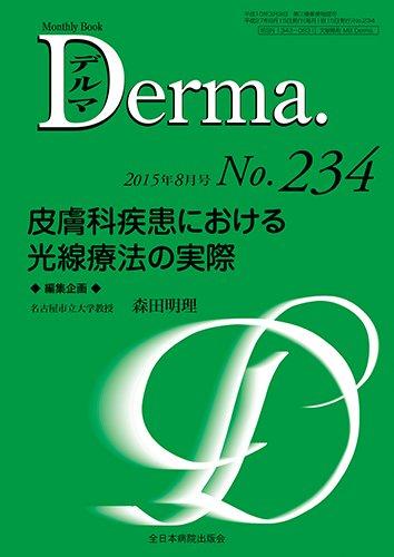 皮膚科疾患における光線療法の実際 (MB Derma(デルマ))
