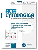Lymph Node Fine-Needle Cytology and Flow Cytometry in Clinical Practice: An Update