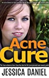 Acne Cure: The Acne Solution to Have Acne Free Skin for Life (Your Personal Acne Remedy Guide) (Self Help Book 5)