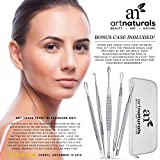 Art Naturals Blackhead Remover Dermatologist Grade Kit, Removes Blackheads & Blemishes, BEST Extractor Tool Set - Treats Pimples, Facial Acne & Comedones -100% Hygienic, Skin Safe, Won't Cause Redness