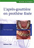 L'apr�s-goutti�re en proth�se fix�e