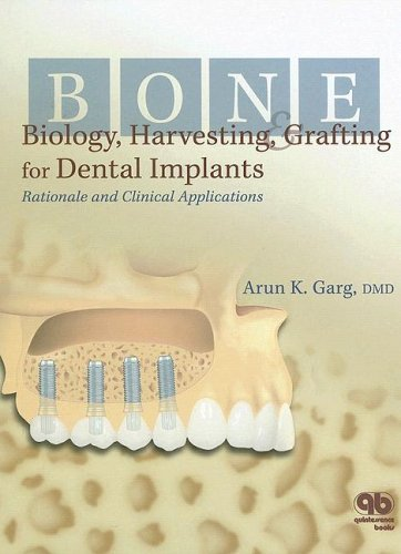 Bone Biology, Harvesting, & Grafting For Dental Implants: Rationale and Clinical Applications