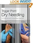 Trigger Point Dry Needling: An Eviden...