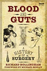 Blood and Guts: A History of Surgery