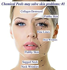 I Max 15% Trichloroacetic Acid Serum-Deep Chemical Peel. from MaxLife USA, Inc