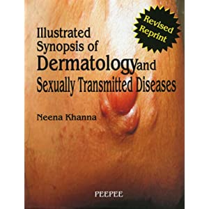 Illustrated Synopsis of Dermatology & Sexually Transmitted Disea