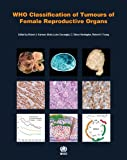 WHO Classification of Tumours of the Female Reproductive Organs (IARC WHO Classification of Tumours)