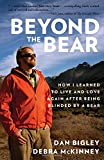 Beyond the Bear: How I Learned To Live And Love Again After Being Blinded By A Bear