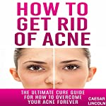 How to Get Rid of Acne: The Ultimate Cure Guide for How to Overcome Your Acne Forever | Caesar Lincoln