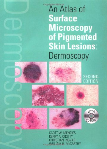 An Atlas Of Surface Microscopy Of Pigmented Skin Lesions: Dermoscopy, Second Edition